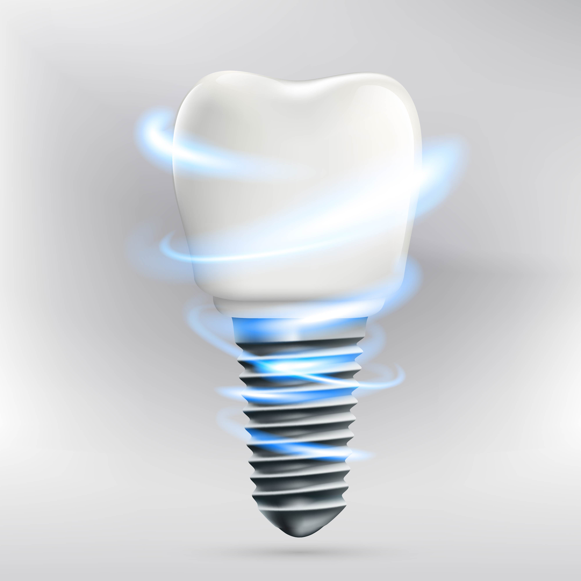 why should i opt for dental implants in north palm beach