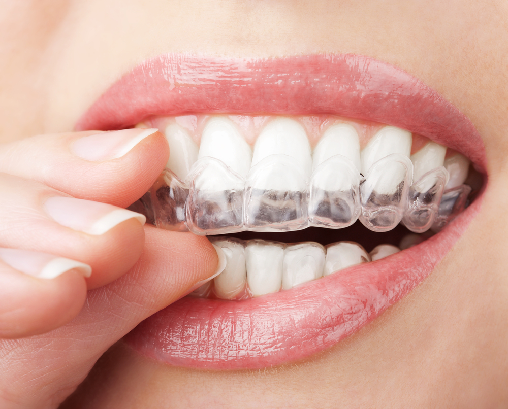 is invisalign in Jupiter better than traditional braces?