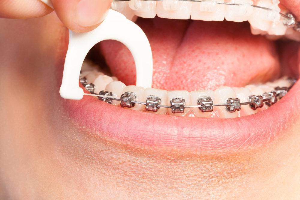 how do i care for north palm beach orthodonitcs