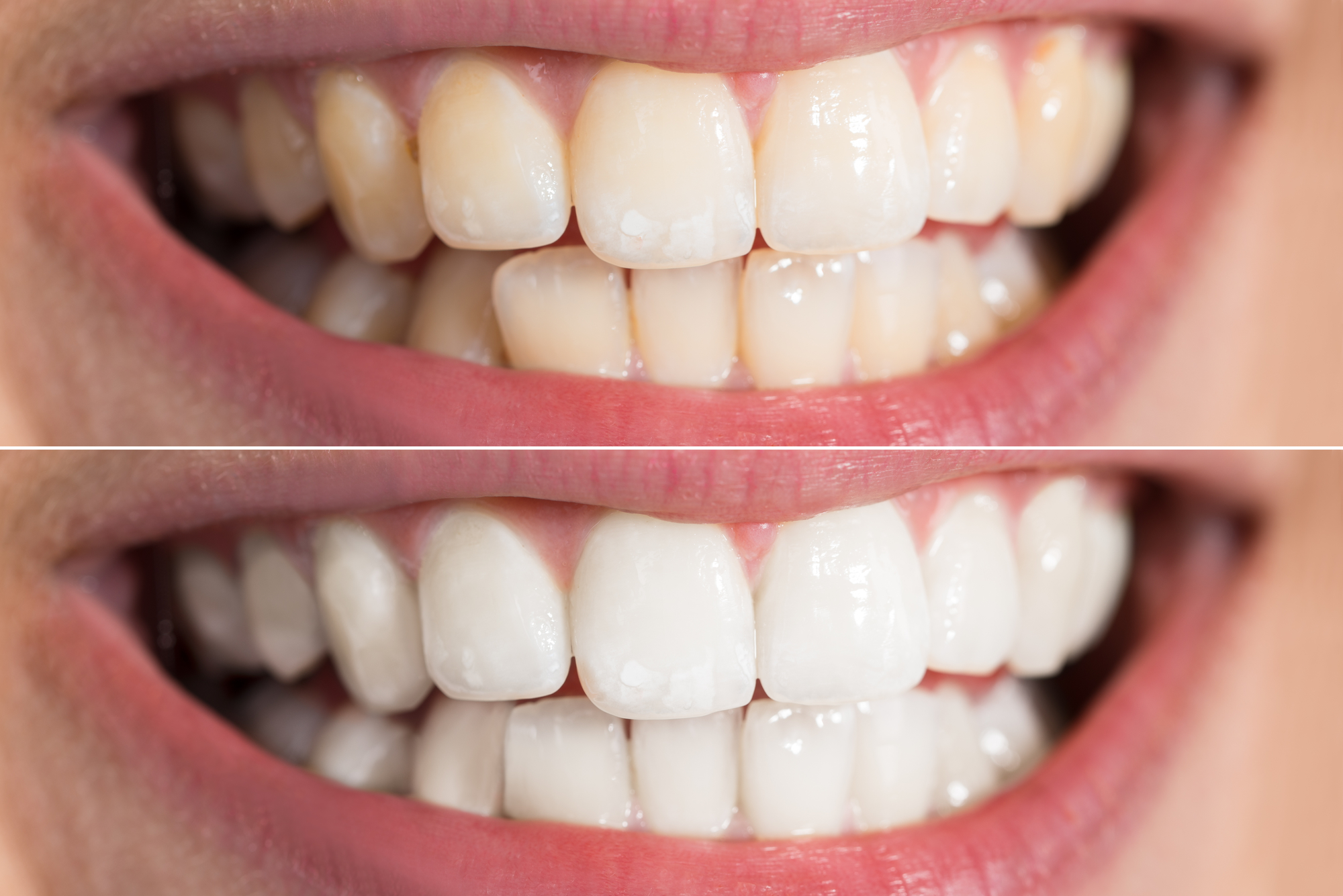 What are the benefits of teeth whitening in North Palm Beach?