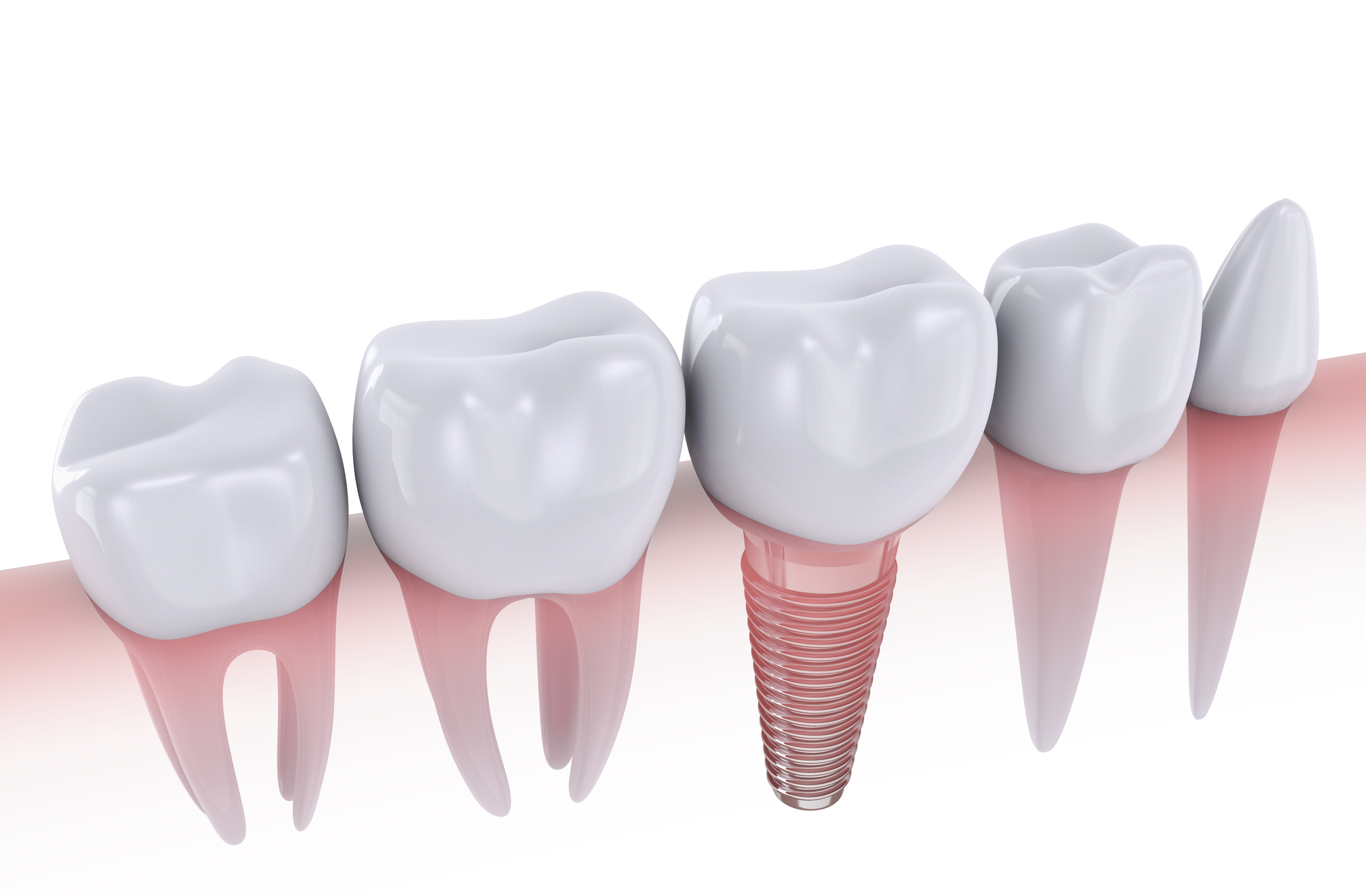 Am I a candidate for dental implants in West Palm Beach FL?