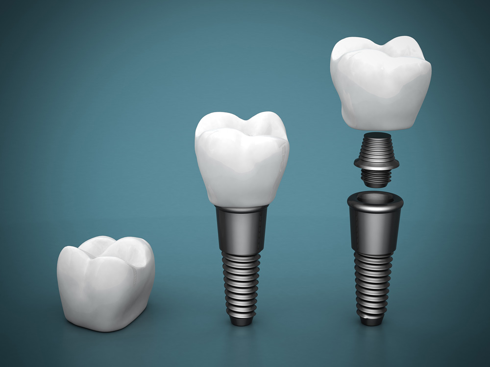 Who offers dental implants in North Palm Beach?
