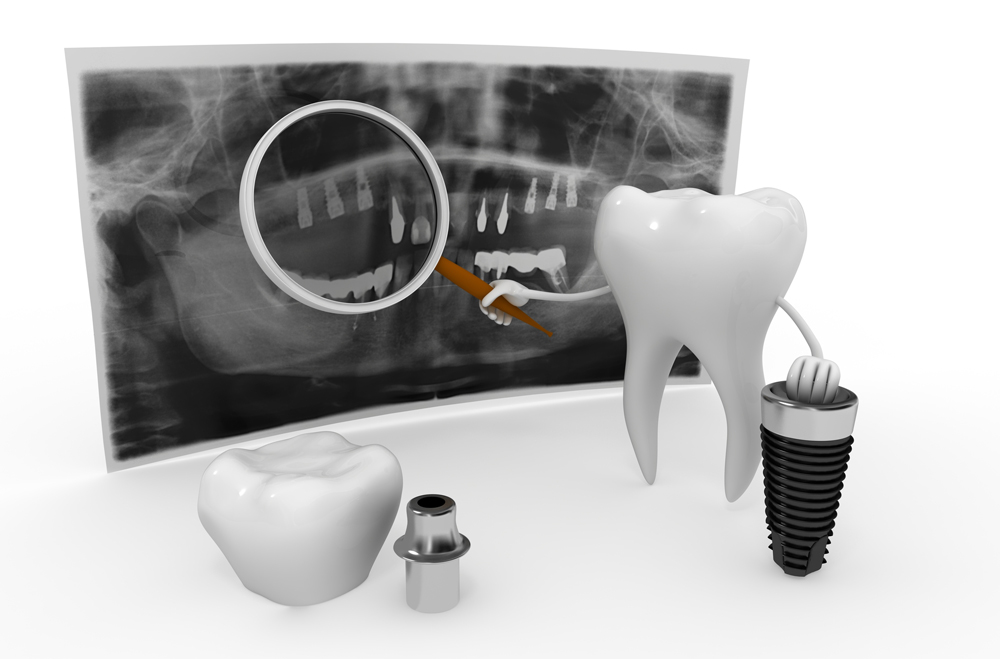 How do dental implants in West Palm Beach FL improve oral health?