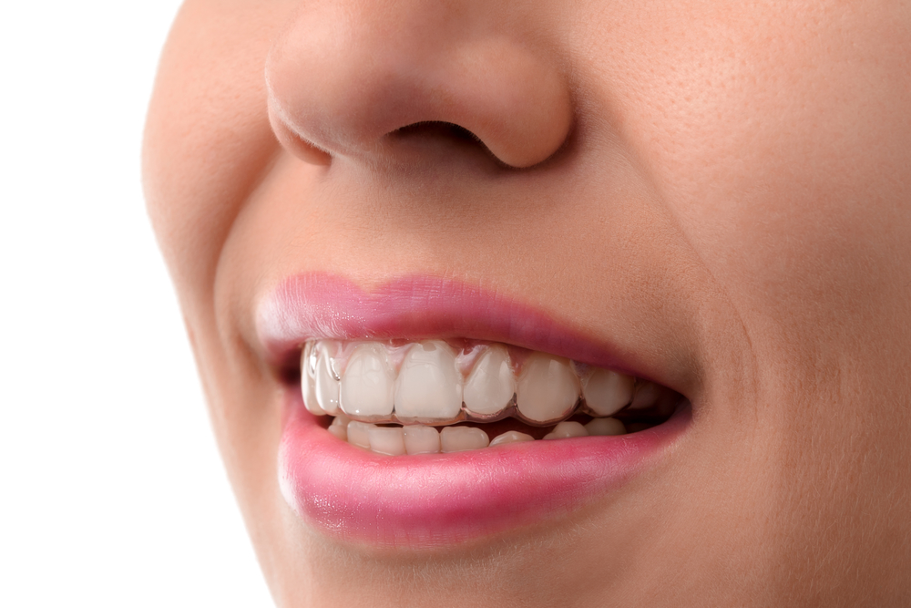 Am I a candidate for Invisalign in Jupiter?