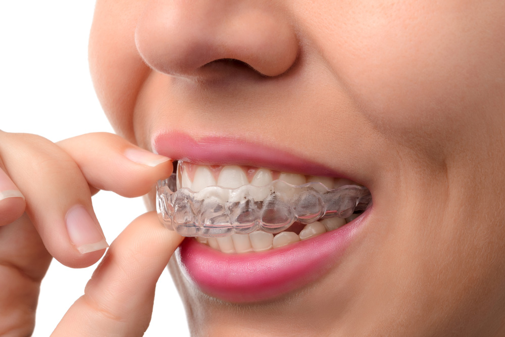 Where can I get Invisalign in West palm Beach?