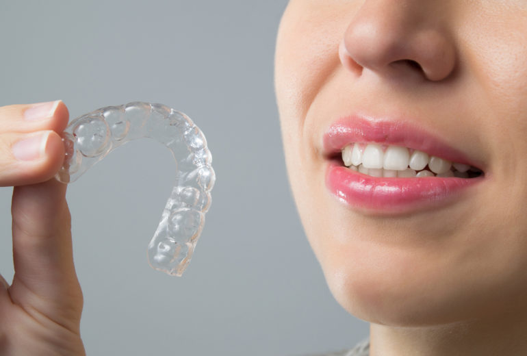 What is Invisalign in west palm beach?