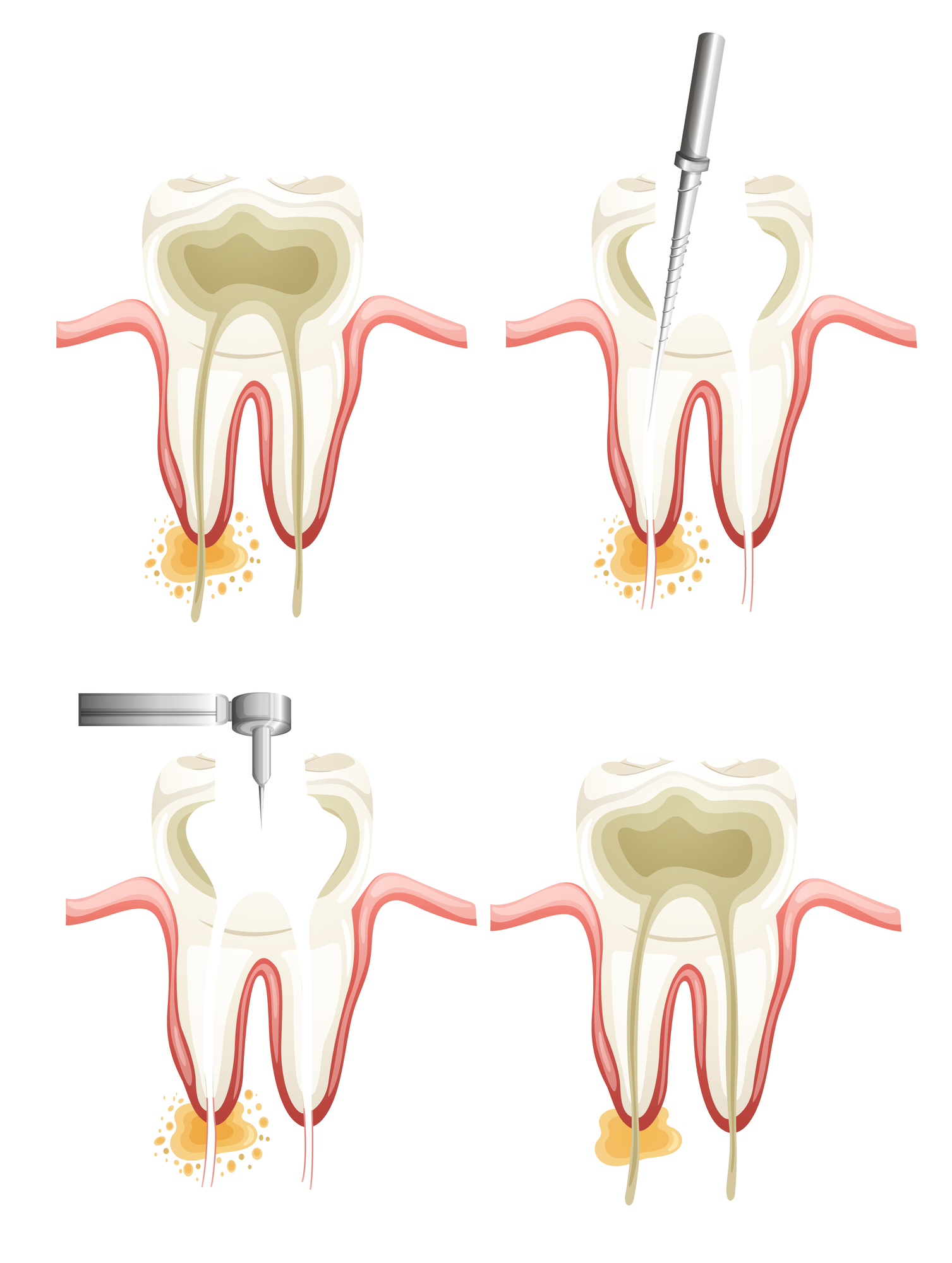 What is a root canal west palm beach?