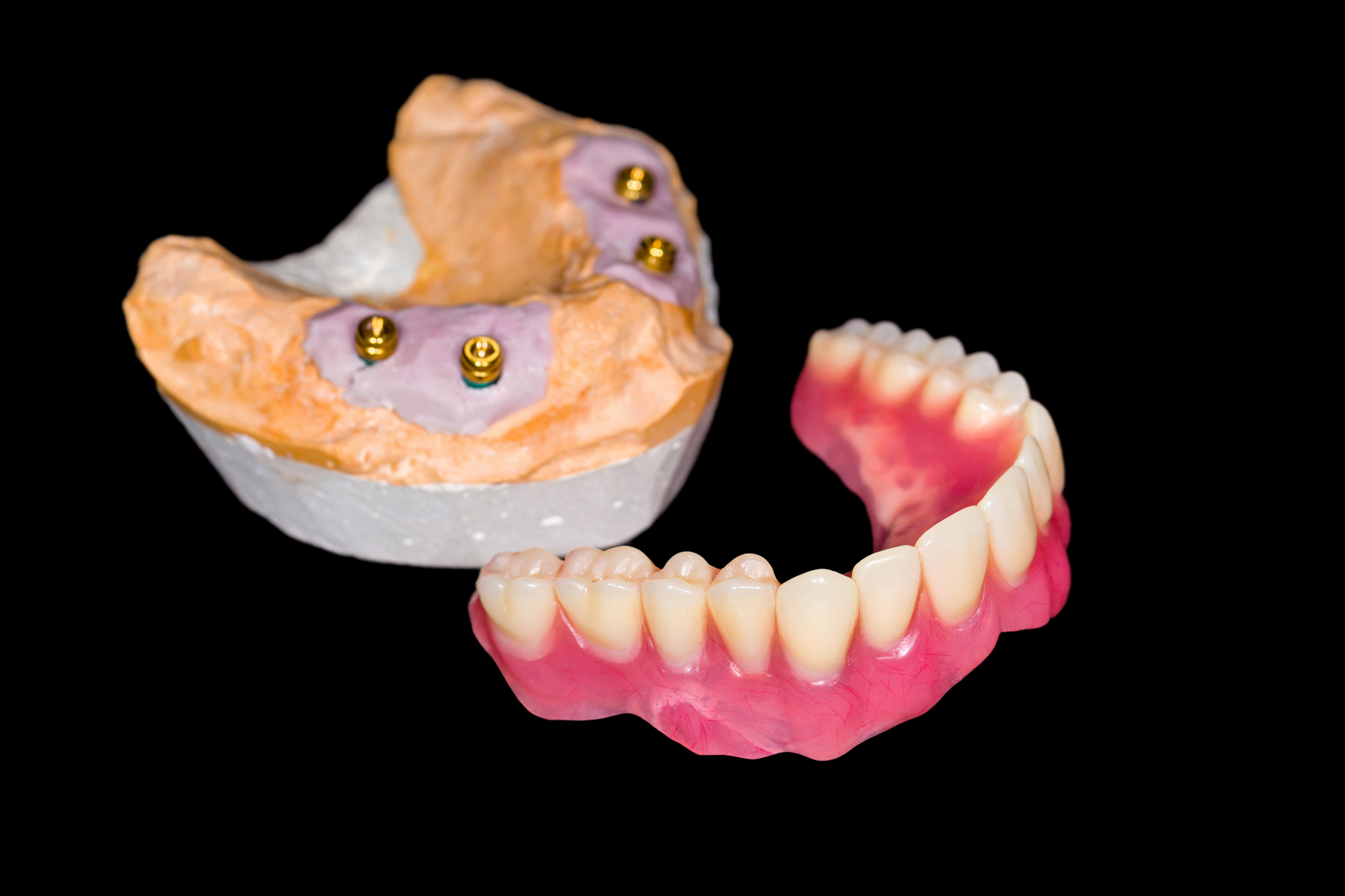 Where are the best dentures Jupiter?